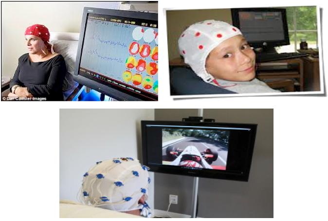 Neurofeedback 2ème génération loreta