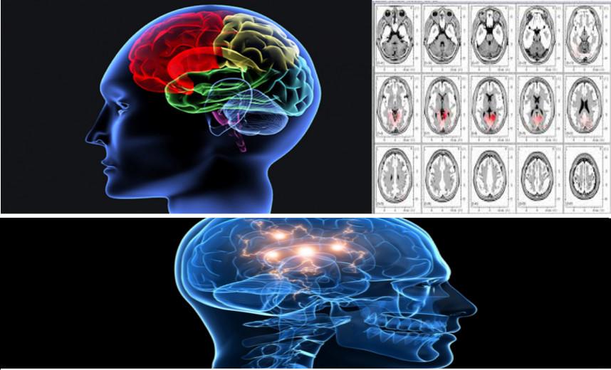 Carte du cerveau : brain mapping, par le QEEG
